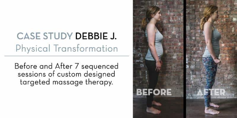massage therapy for diastasis recti massage case study at Bodyworks DW